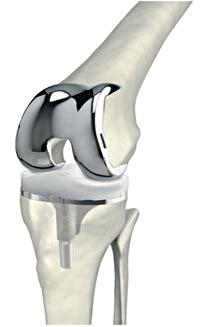 aufbauknieendoprothese